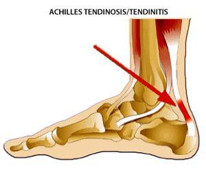 fájdalom helye az Achilles-ín gyulladásnál