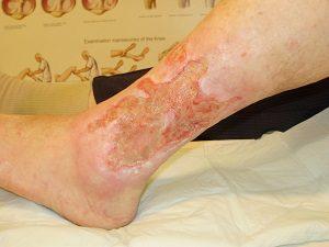 kiterjedt lábszárfekély