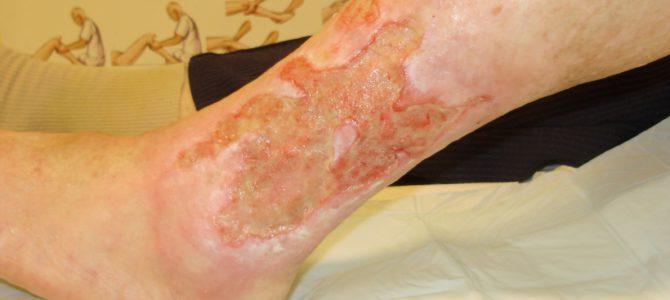 Ismeri a lábszárfekély lelki okait?