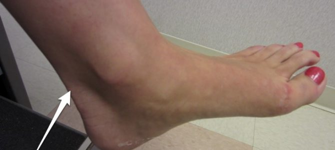 Az Achilles-ín gyulladást hogyan kezelheti eredményesen?