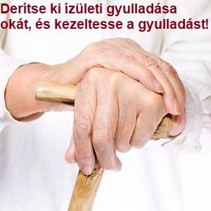 ellenőrizze a kezét az izületi gyulladásról