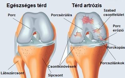 artrózis lelki okai