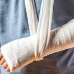 csonttörés meddig fáj