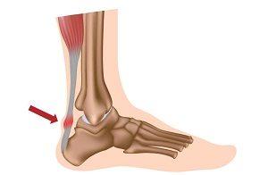Achilles fájdalom futás