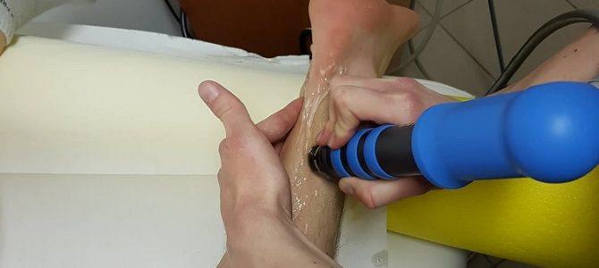 Fájdalmas Achilles-ín kezelése lökéshullámmal