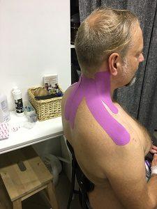 kineziológiai tapasz stabil rögzítése nyakra