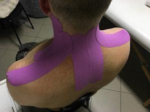kineziológiai tapasz felragasztása nyakra