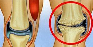 Az artrózis súlyosbodásának kezelése. Ez a leggyakoribb betegség