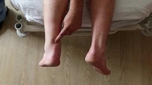 Achilles szakadás: Így néz ki a műtét utáni gyógytorna