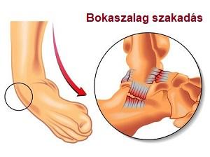 bokaszalag műtét