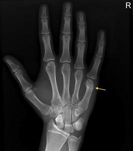 """Sérülések """"percről percre"""": kézujjak és a kéz törései"""