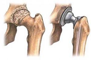 csípőfájdalom a csípő izmaiban