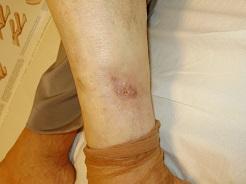 nem gyógyuló seb a lábon visszér