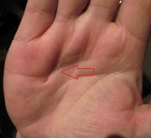 hogyan kell kezelni a tenyerek s a lbak pikkelysömörét)