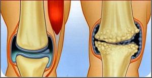 az artrózis sikeres kezelése fáj a bokám körül