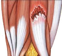 kecske ízületi fájdalma kecskében a brachialis artrózis kezelése