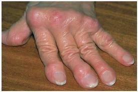 gerincfájdalom a kéz ízületeiben)