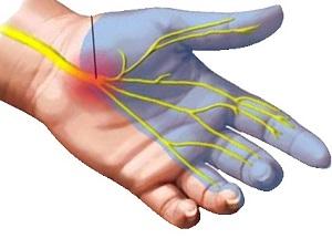 miért fáj a vállízület és a kéz zsibbad a keresztirányú zsineg a csípőízületeket fáj