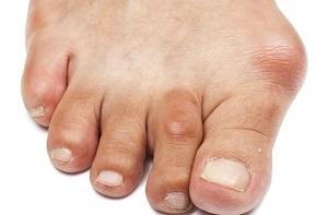 arcfájdalom a lábak ízületeiben)