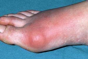 artrózis és köszvény kezelése)