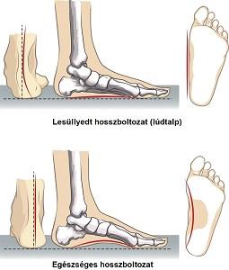 a bal láb ízülete fáj mint hogy kezelje)
