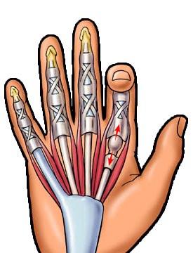 arthrosis műtéti kezelés ízületi és testfájdalom