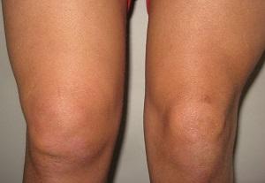 ízületi fájdalom reiter-szindróma