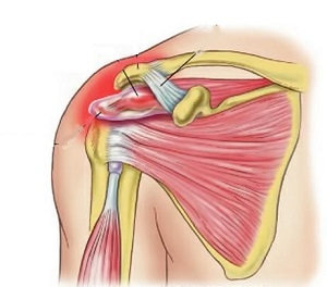 rotator köpeny szindróma