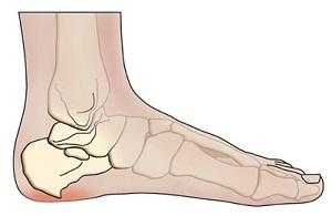sarkantyúk a lábujjak kezelése között)