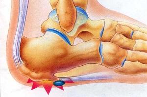 csonthártya gyulladás sarok
