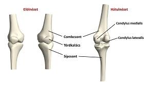 térdízület ortopédiai kezelése