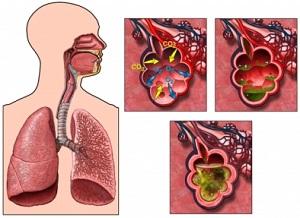 tüdőgyulladás kezelése magas vérnyomás esetén